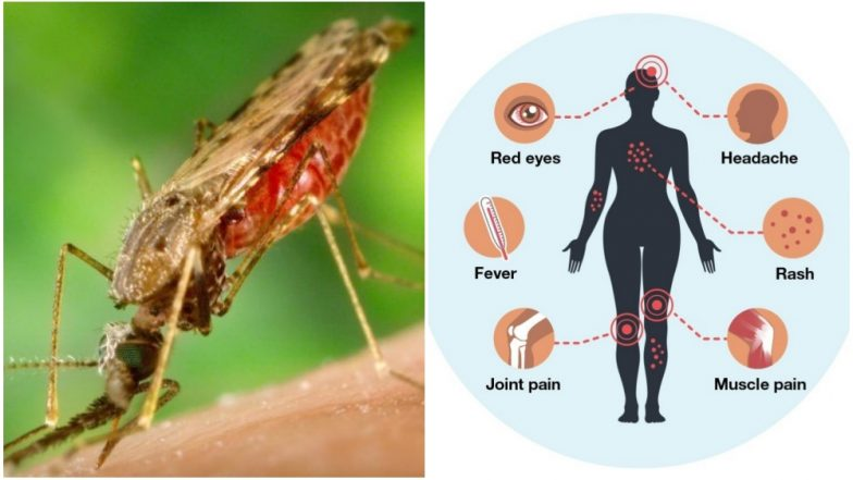 Zika Virus Disease: What Are The Causes, Symptoms and Treatment of This Mosquito-Borne Illness
