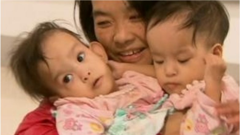 Bhutanese Conjoined Twins to Be Separated by Australian Surgeons in a 6-Hour Long Operation (View Pic)
