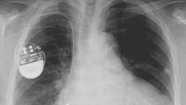 Bad Quality Pacemakers, Hip Implants Responsible For 83,000 Deaths? Poorly-Tested Medical Equipment May Be Unsafe, Says Study