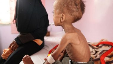 Yemen: 85,000 Kids Dead in Last 3 Years as Their Vital Organs Stop Functioning Due to Malnutrition, Says Report