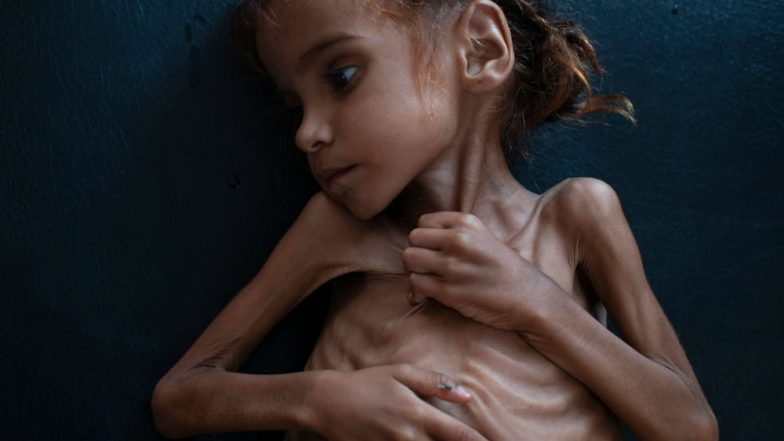Amal Hussain, Malnourished Yemen Girl Whose Famous Photo Turned World's Eyes to Famine, Is Dead