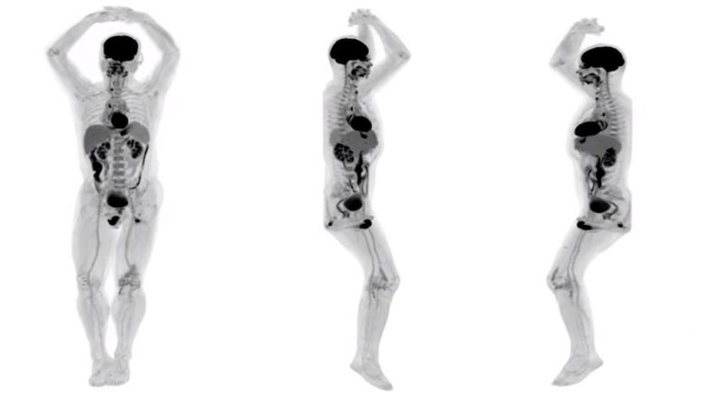 World's First Total-Body Scanner Reveals Pictures of Full Human Body Scan