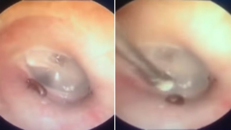 Doctors Removing an Ant From Vietnamese Man's Ears Will Make Your Stomach Churn (Watch Video)