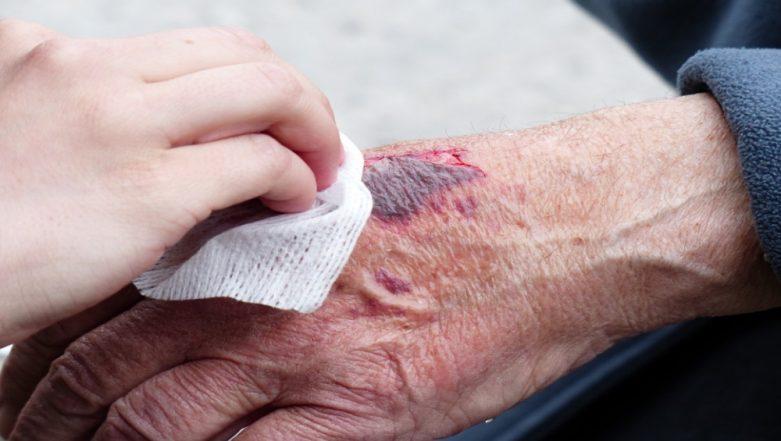 Heal Wound Easily: Wearable Biosensors Can Help Healing Process by Imitating Skin
