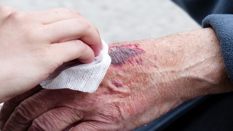 Want to Heal Wounds Faster? Try E-Bandages Which Speed up Recovery