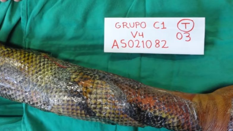 Tilapia Fish Skin Therapy to The Rescue! Here's How Wrapping the Fish Skin Can Be an Effective and Less Painful Way to Treat Burns