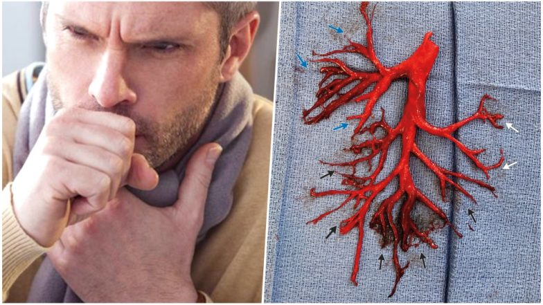 'We were astonished': Man coughs up huge mystery blood clot