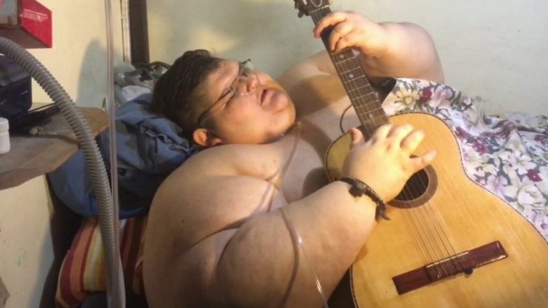 World's Heaviest Man Loses 300 Kg and His Guinness World Record! Juan Pedro Franco Aims to Lose More