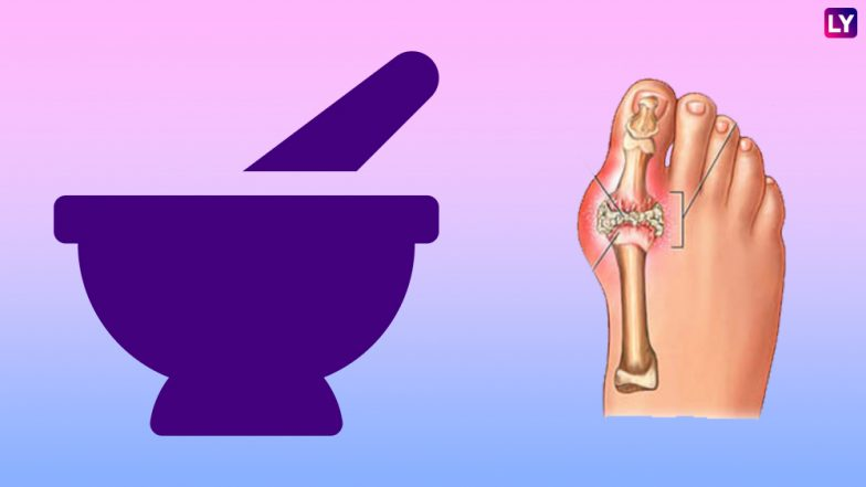 Home Remedy of the Week: 6 Natural Remedies to Reduce Gout Inflammation
