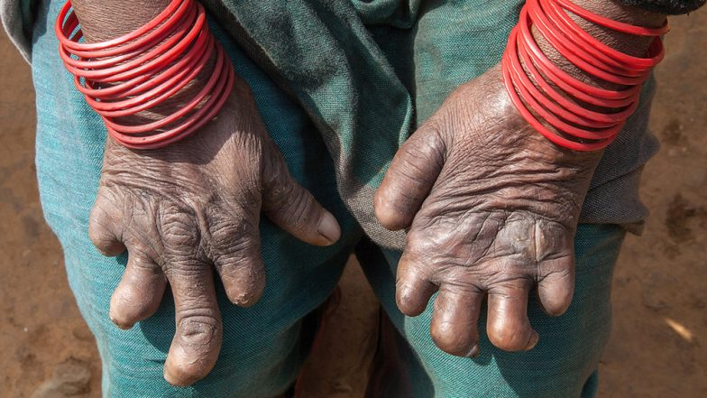 World Leprosy Day 2019: Expert Says Why It's Dangerous To 'Cure' Leprosy With Alternative Medicine