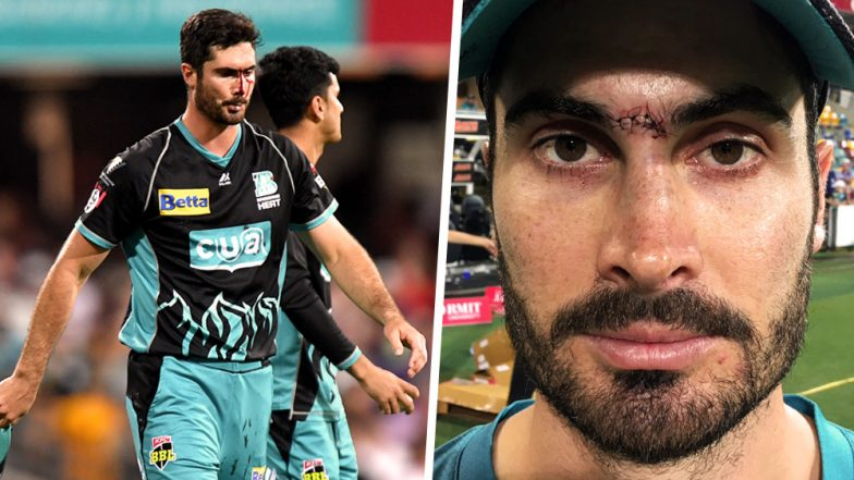 Ben Cutting Injures Nose After Failing to Take a Catch in BBL 2018–19 Match Against Melbourne Renegades, Returns After 5 Stitches: Watch Video