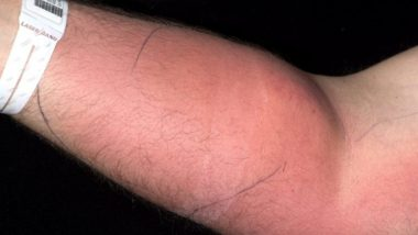 Semen Injected by Man Into His Arm For 18 Months to Treat Back Pain