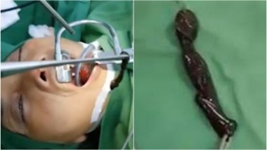 Woman Diagnosed With Throat Tumour; Doctors Shocked to Find Two-Inch-Long Leech Inside it (Watch Viral Video)
