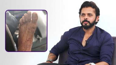Sreesanth Reveals That People 'Abused' Wife Bhuvneshwari On Twitter After She Shared Pictures Of His Injury! Watch Video
