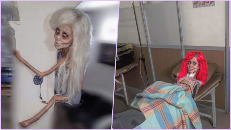 Angelina Jolie Lookalike Sahar Tabar Claims to Have Broken Her Neck in Hospital, Shares Recent Haunting Pictures on Instagram