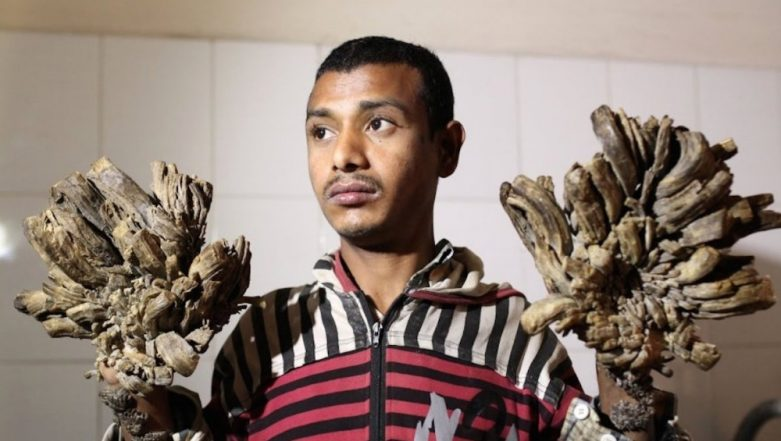 'Tree Man' of Bangladesh Seeks Treatment as Disease Returns; What is Epidermodysplasia Verruciformis?