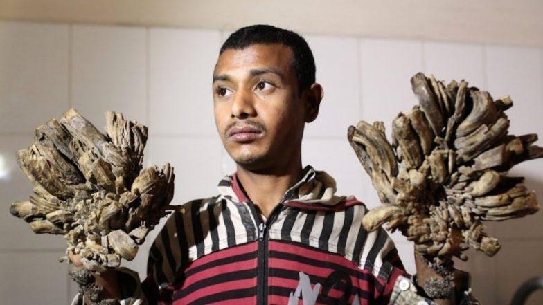 'Tree Man' of Bangladesh Seeks Treatment as Disease Returns; What is Epidermodysplasia Verruciformis?