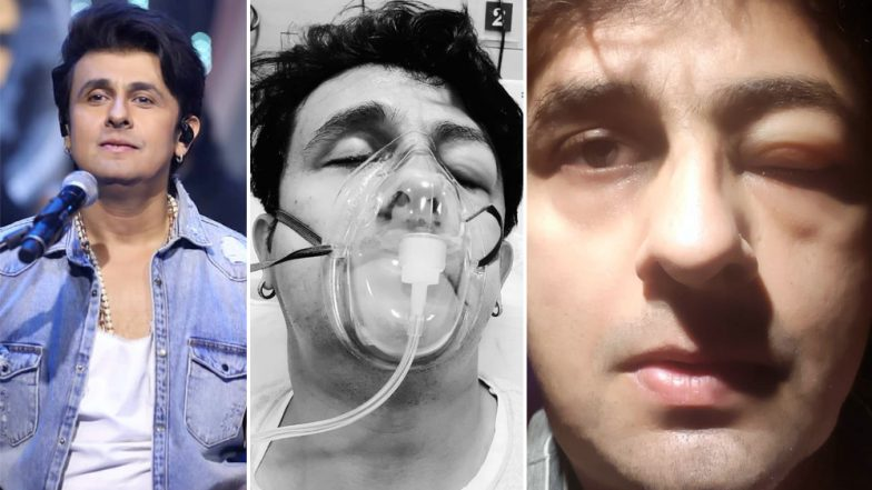 Sonu Nigam in ICU Due to Severe Seafood Allergy; Are You Intolerant To Fish? Read Causes, Symptoms and Treatment