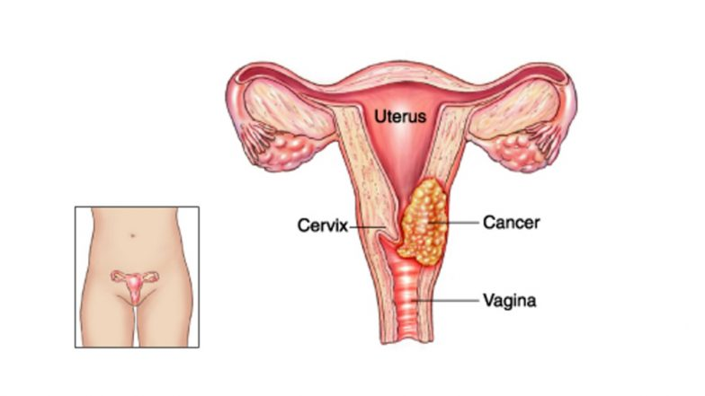 World Cancer Day 2019: What is Cervical Cancer and Why EVERY Woman Should Get Herself Screened