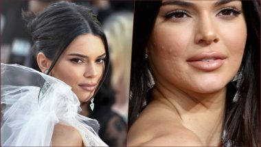 Let Me Live: Kendall Jenner Admits 'Crying Endlessly' on Being Shamed for Acne