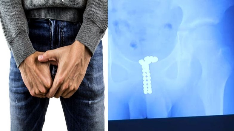 Shocking! Penis Shoved with 39 Magnet by a 12-year-old Schoolboy out of Curiosity; Left Him Unable to Pee