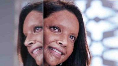Deepika Padukone's Acid Attack Survivor Look From 'Chhapaak' Unveiled