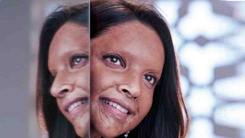 Deepika Padukone's Acid Attack Survivor Look From 'Chhapaak' Unveiled