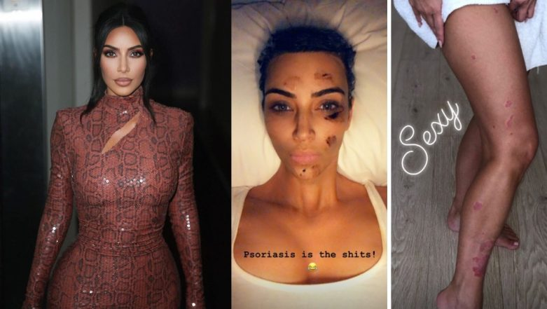 Kim Kardashian West Reveals She Has Psoriasis: 10 Natural Remedies to Treat the Skin Disease at Home!