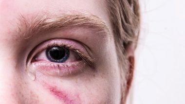 Eye Injury Can Now Be Fixed Without Surgery After American Scientists Invent Adhesive Gel