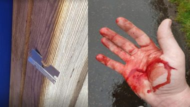 Scotland Dad's Hand Cuts Open After Sickheads Taped Open Razor Blades to Swing in Children's Play Park