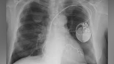 Radiotherapy Doubles the Survival Chances of Mesothelioma Cancer Patients