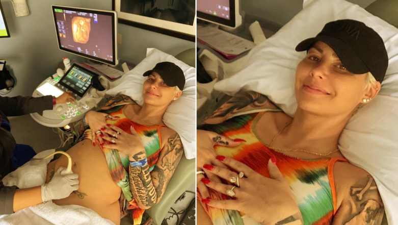 Amber Rose Announces Her Pregnancy with Boyfriend Alexander Edwards, View Pic