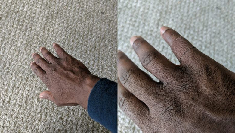 Man's Reaction on Finding a Bandage That Blends With His Skin Tone Goes Viral And Twitter Gets Teary Eyed