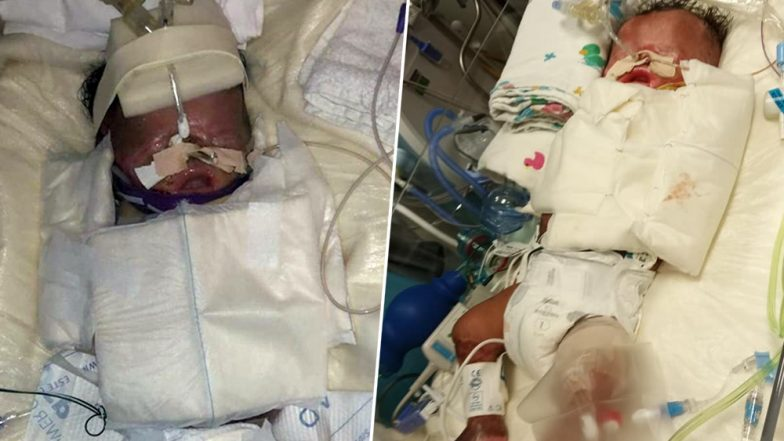 Miracle Baby! Premature Child Born Without Any Skin Survives After Grafting Surgery in Texas