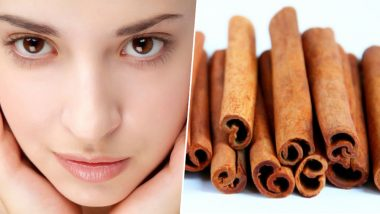 Cinnamon Benefits for Skin: How to Fight Acne and Fade Scars With This Fragrant Spice (Watch Video)