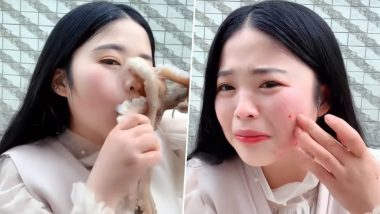 Revenge Served Cold! Chinese Blogger Attacked, Face Disfigured By Octopus While She Tried to Eat it Alive (Watch Viral Video)