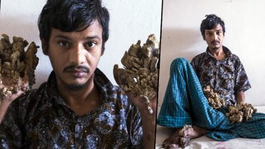 Bangladeshi 'Tree Man' Abul Bajandar Wants Hands Amputated to Relieve Pain Caused By His Condition Epidermodysplasia Verruciformis