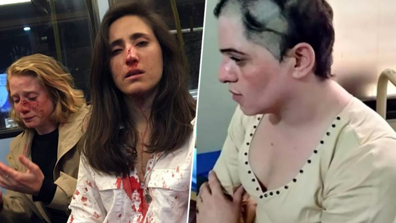 After Lesbians Get Bloodied in London, Trans Woman Attacked in Pakistan, Head Forcibly Shaved During Pride Month