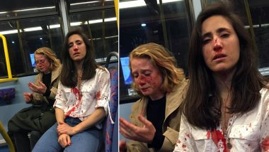Lesbian Couple in London Attacked by Men For Refusing to Kiss Each Other; Woman's Horrific Account Goes Viral