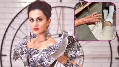 Taapsee Pannu Gets Seriously Injured on The Sets of 'Game Over', Actress Shares Pics