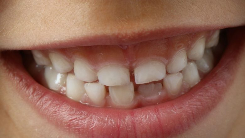 Poor Oral Health Increases Risk of Liver Cancer