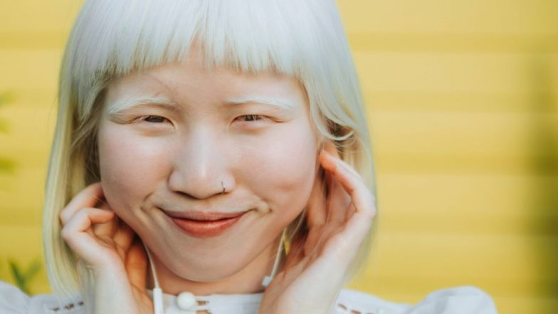 International Albinism Awareness Day 2019: Theme, History and Significance of the Day to Celebrate People With the Congenital Disorder