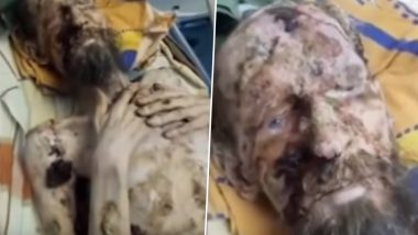 'Living Mummy' Was Never Attacked by Bear and Kept in Den, Doctor Reveals the Truth Behind Fake Viral Video