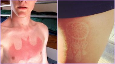'Sunburn Tattoos' Are the Latest Trend on Social Media & We Are Not Talking About Tan Lines Here (See Viral Pics)