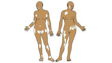 World Vitiligo Day 2019: Theme, Significance of the Day; How Vitiligo Affects Mental Health