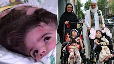 Conjoined Twins Safa and Marwa Ullah from Pakistan Separated After 55-Hour-Long Surgery in London