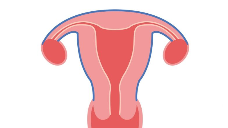 Endometriosis Cause Discovered By Scientists Who Are Hopeful of a Cure Soon