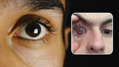 Parasites Eat Man's Eye As He Wore Contact Lenses in Shower Making Him Go Blind