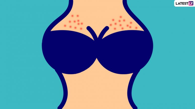 Itchy Nipples? 5 Reasons Why Your Breasts Are Irritated - Causes and Treatments