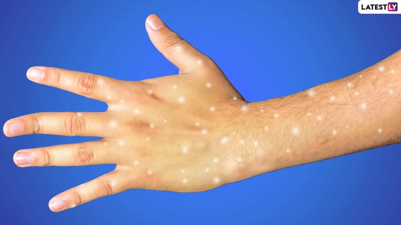 What Are the White Spots on Your Skin and Should You Be Worried? Know More About Idiopathic Guttate Hypomelanosis